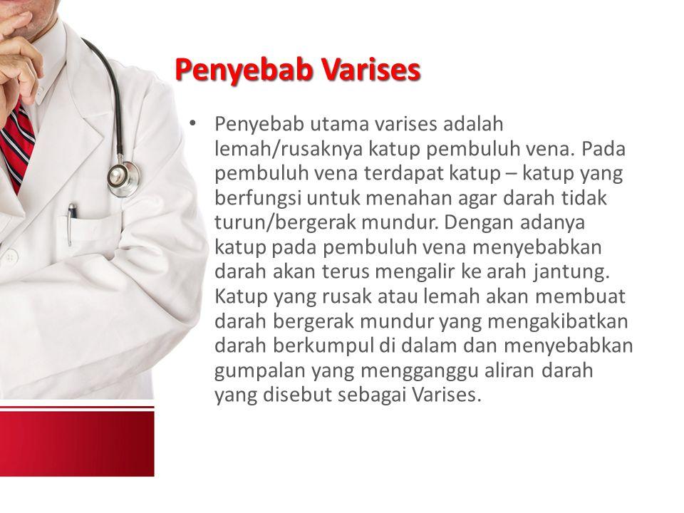 Penyebab Varises Penyebab utama varises adalah lemah/rusaknya katup pembuluh vena.