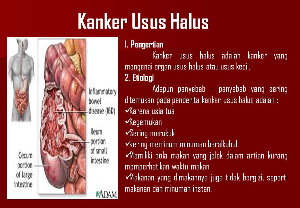 Kanker Usus Halus 1. Pengertian Kanker usus halus adalah kanker yang mengenai organ usus halus atau usus kecil. 2. Etiologi Adapun penyebab – penyebab
