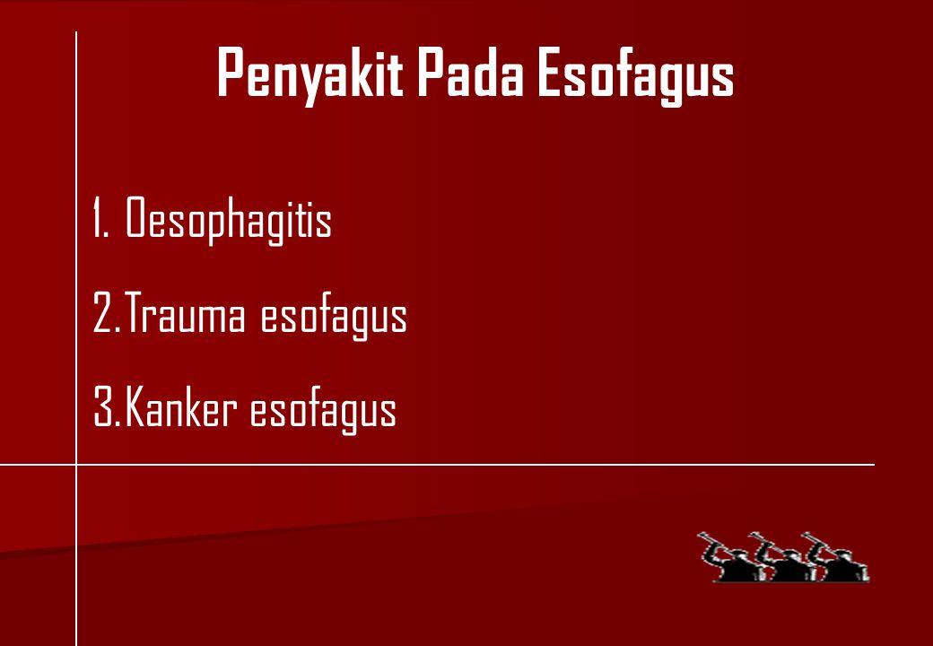 1.Oesophagitis 2.Trauma esofagus 3.Kanker esofagus Penyakit Pada Esofagus