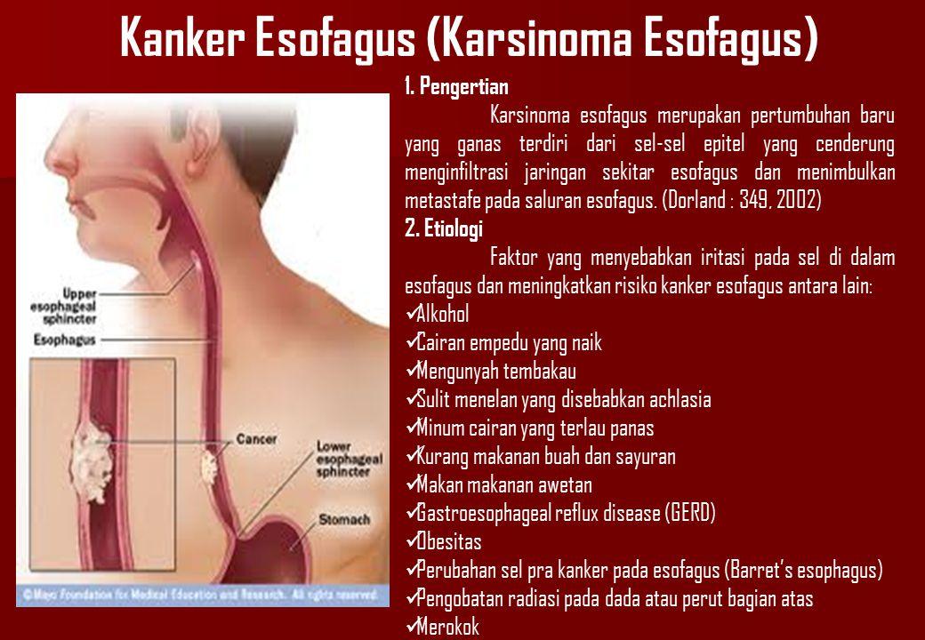 Kanker Esofagus (Karsinoma Esofagus) 1. Pengertian Karsinoma esofagus merupakan pertumbuhan baru yang ganas terdiri dari sel-sel epitel yang cenderung