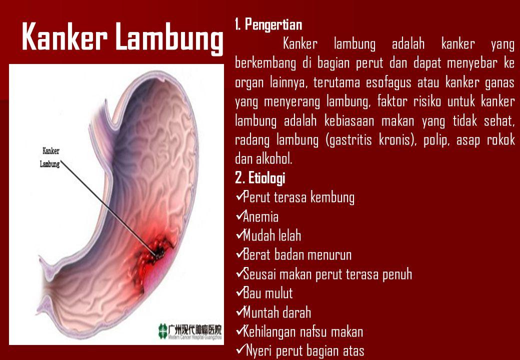 Kanker Lambung 1. Pengertian Kanker lambung adalah kanker yang berkembang di bagian perut dan dapat menyebar ke organ lainnya, terutama esofagus atau