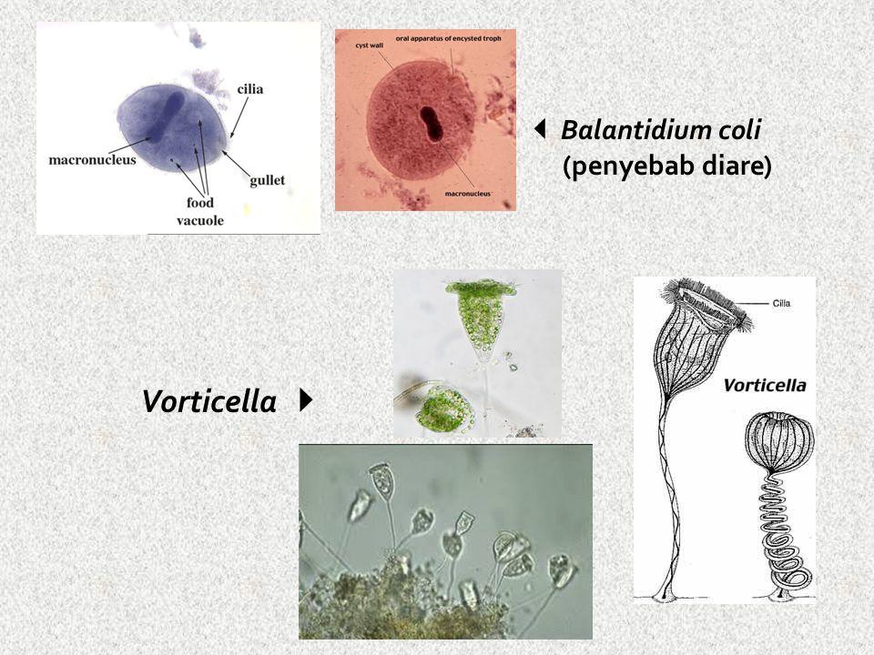  Balantidium coli (penyebab diare) Vorticella 