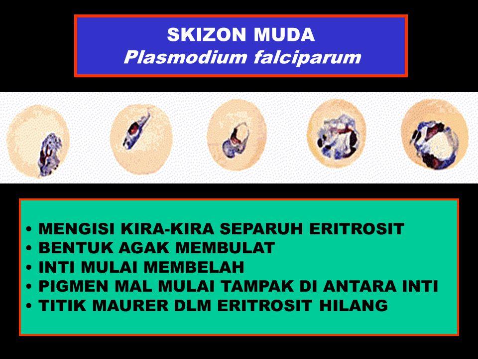 SKIZON MUDA Plasmodium falciparum MENGISI KIRA-KIRA SEPARUH ERITROSIT BENTUK AGAK MEMBULAT INTI MULAI MEMBELAH PIGMEN MAL MULAI TAMPAK DI ANTARA INTI