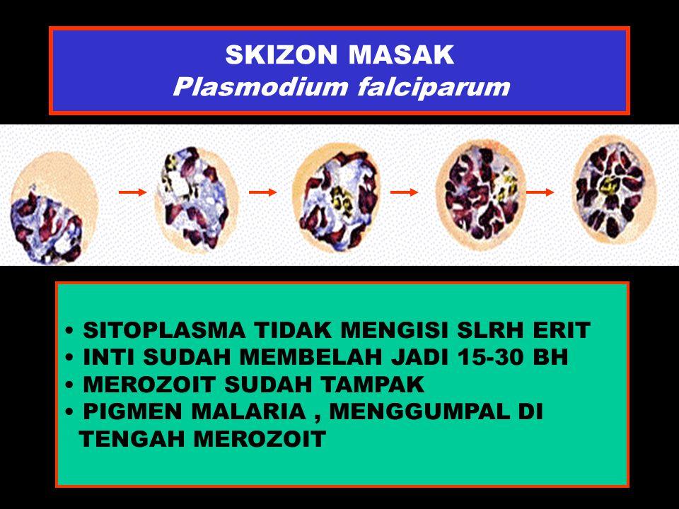 SKIZON MASAK Plasmodium falciparum SITOPLASMA TIDAK MENGISI SLRH ERIT INTI SUDAH MEMBELAH JADI 15-30 BH MEROZOIT SUDAH TAMPAK PIGMEN MALARIA, MENGGUMP