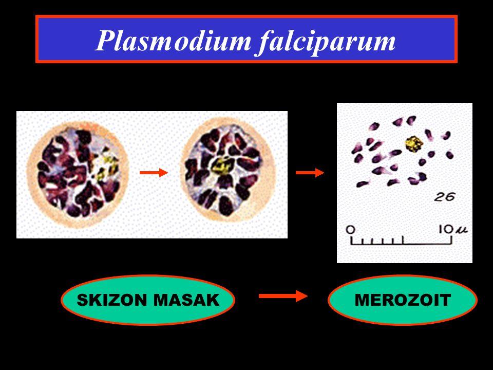 Plasmodium falciparum SKIZON MASAKMEROZOIT