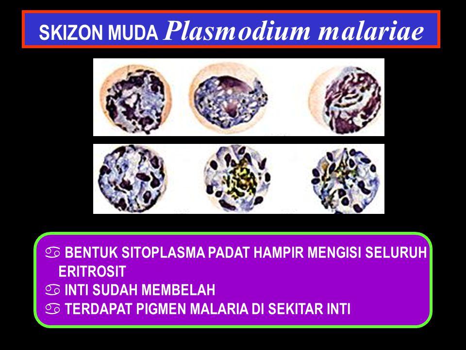 SKIZON MUDA Plasmodium malariae a BENTUK SITOPLASMA PADAT HAMPIR MENGISI SELURUH ERITROSIT a INTI SUDAH MEMBELAH a TERDAPAT PIGMEN MALARIA DI SEKITAR