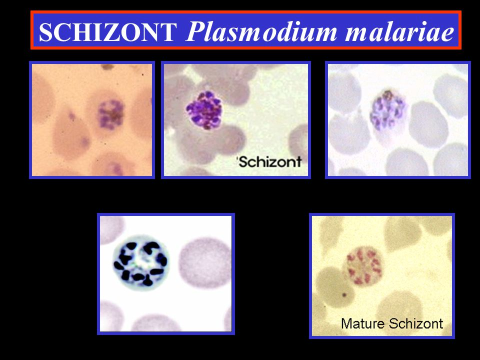 SCHIZONT Plasmodium malariae