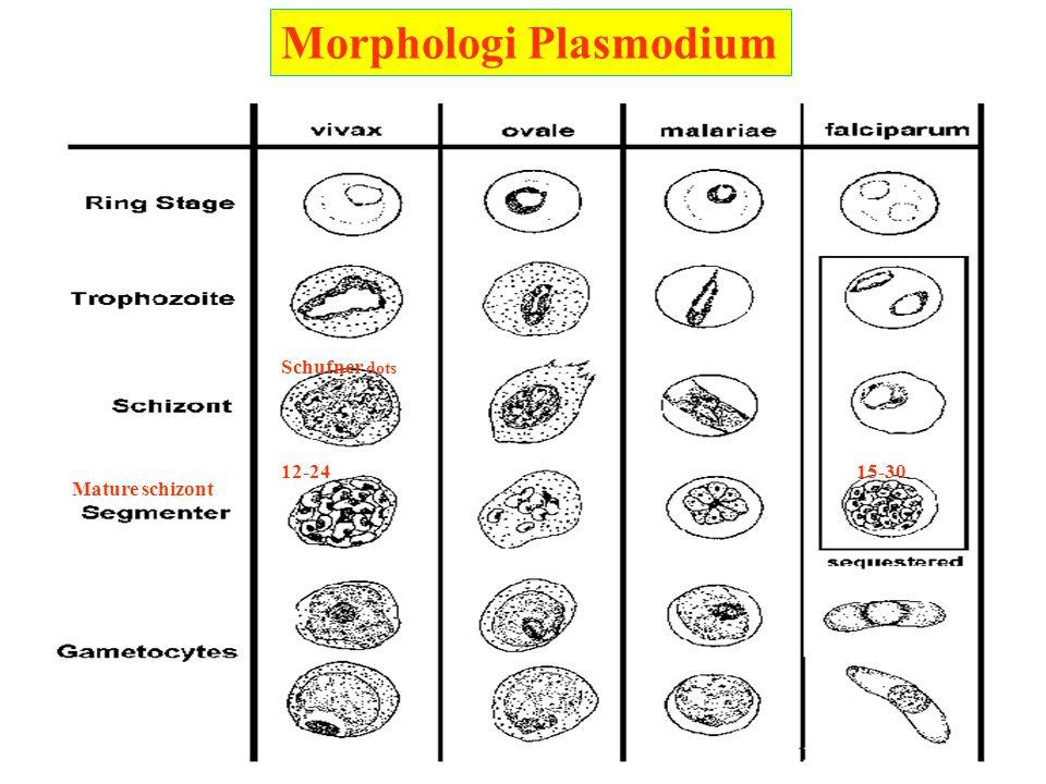 TROFOZOIT MUDA Plasmodium malariae J BENTUK CINCIN, INTI MERAH, SITOPLASMA BIRU, DNG DI DALAMNYA TERDAPAT VAKUOLA CINCIN LEBIH BESAR DARI CINCIN P.