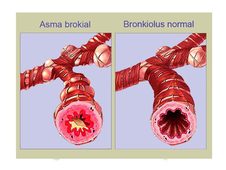 3. Asma Asma ditandai dengan kontraksi yang kaku dari bronkiolus yang menyebabkan kesukaran bernapas. Asma biasanya disebabkan oleh hipersensitivas br