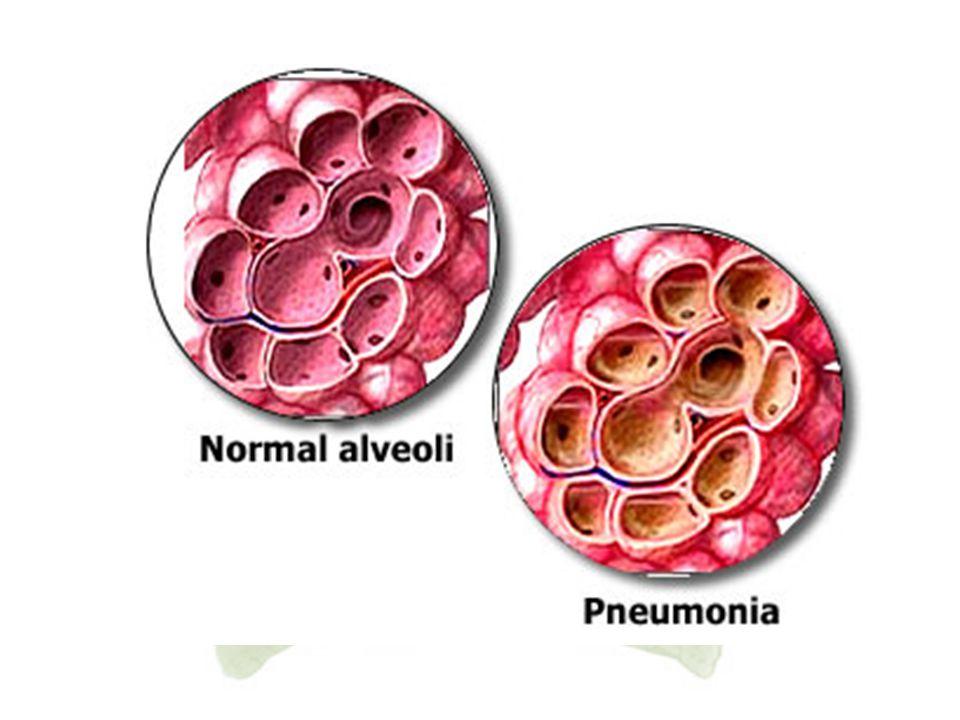 6. Pneumonia Pneumonia adalah peradangan paru-paru dimana alveolus biasanya terinfeksi oleh cairan dan eritrosit berlebihan. Infeksi disebarkan oleh b