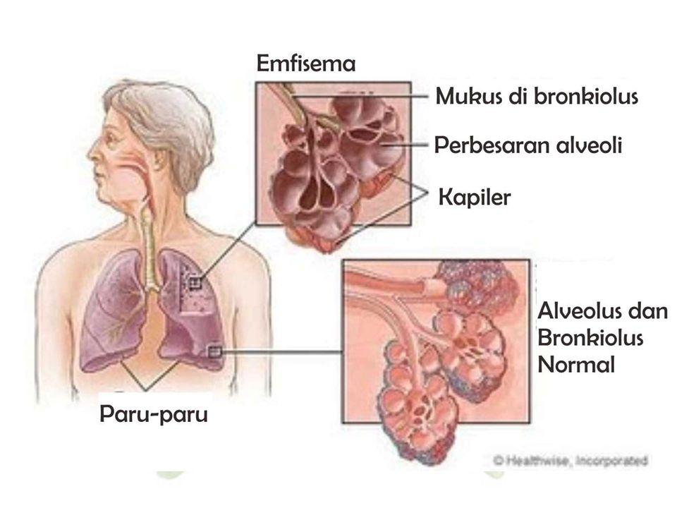 7. Emfisema Paru-paru Emfisema disebabkan karena hilangnya elastisitas alveolus. Pada penderita emfisema, volume paru-paru lebih besar dibandingkan de