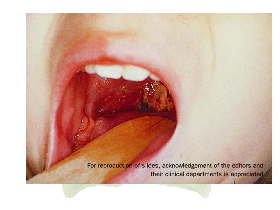 8. Dipteri Dipteri merupakan penyakit infeksi yang disebabkan oleh bakteri Corynebacterium diphterial yang dapat menimbulkan penyumbatan pada rongga f