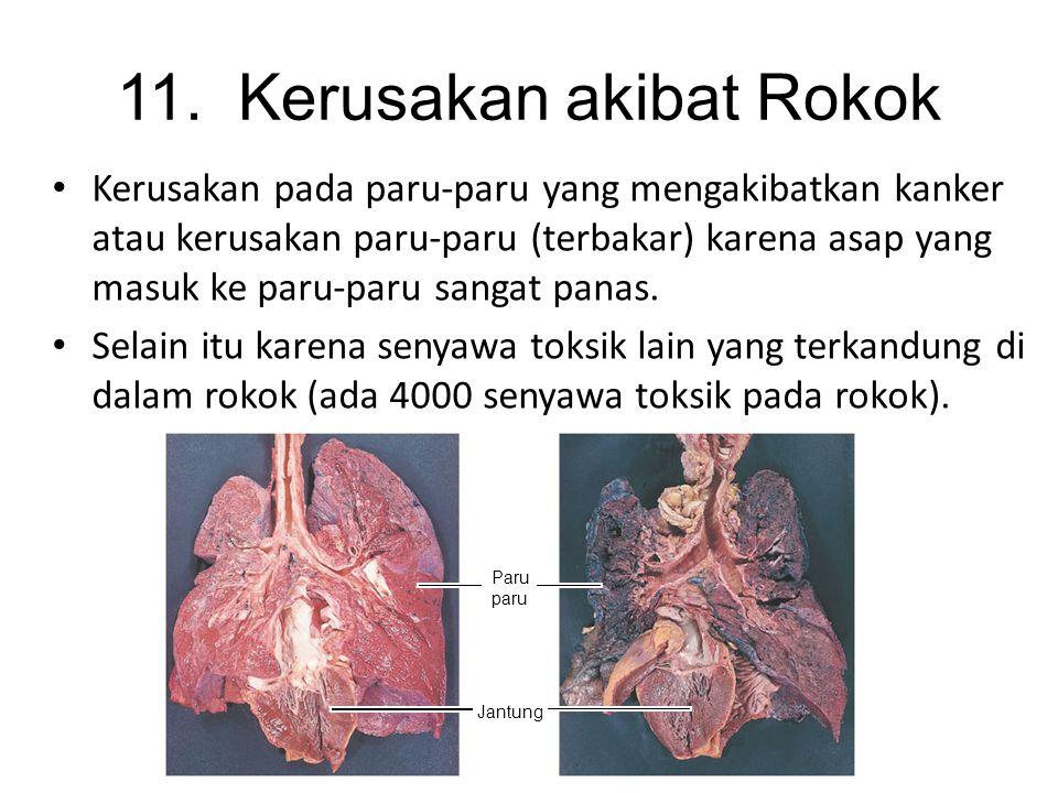 Disebabkan oleh kebanyakan merokok, menghirup asap rokok, debu asbes, radiasi ionisasi, produk petrolium, dan kromium. Kanker paru-paru sangat berpeng