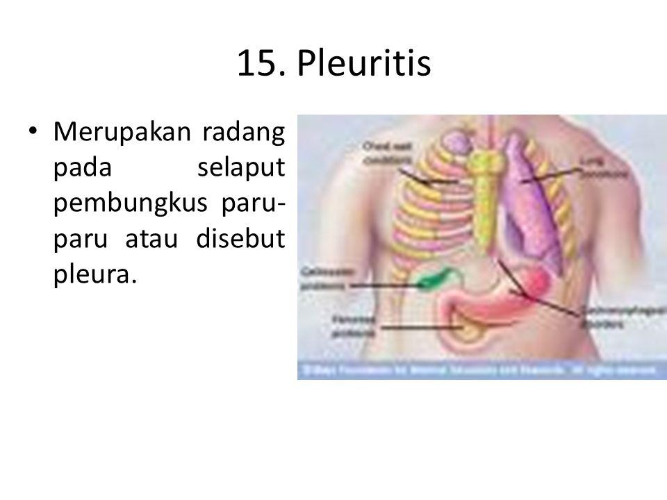 14. Tonsilitis Pembengkakan kelenjar limfe pada sekitar tekak dan hidung yang mempersempit jalan nafas. penderita biasanya lebih suka bernapas lewat m