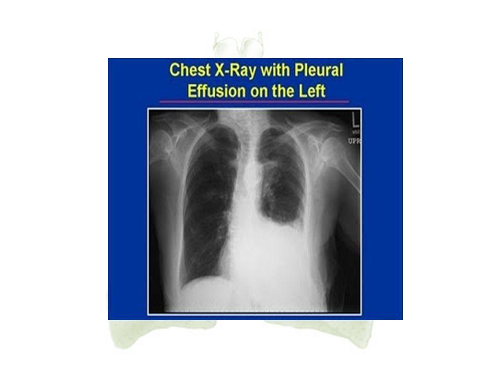 18. Efusi Pleura Efusi pleura adalah suatu keadaan dimana terdapat penumpukan cairan dalam pleura berupa transudat atau eksudat yang diakibatkan karen