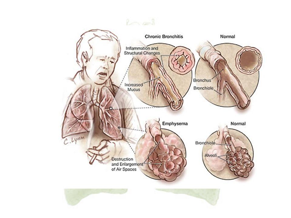 19. PPOK adalah penyakit paru dengan terjadinya sumbatan aliran udara pada paru yang berlangsung lama, dikenal sebagai Chronic Obstructive Pulmonary D