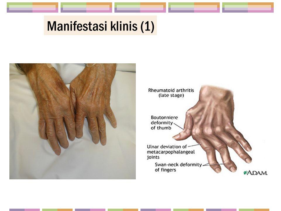 Manifestasi klinis (1)