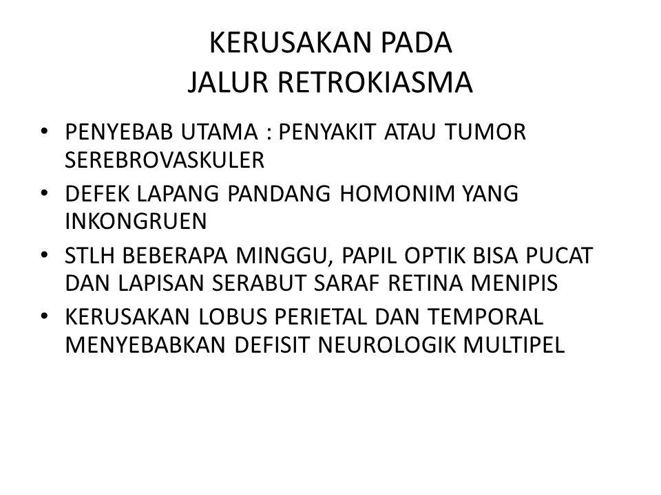 PUPIL NORMAL BERBEDA-BEDA UKURANNYA, KIRA2 3-4MM, PADA ANAK-ANAK CENDERUNG BESAR FUNGSI PUPIL MENGONTROL JUMLAH CAHAYA YANG MASUK KEMATA UNTUK MENDAPAT FUNGSI VISUAL TERBAIK PADA BERBAGAI DERAJAT INTENSITAS CAHAYA