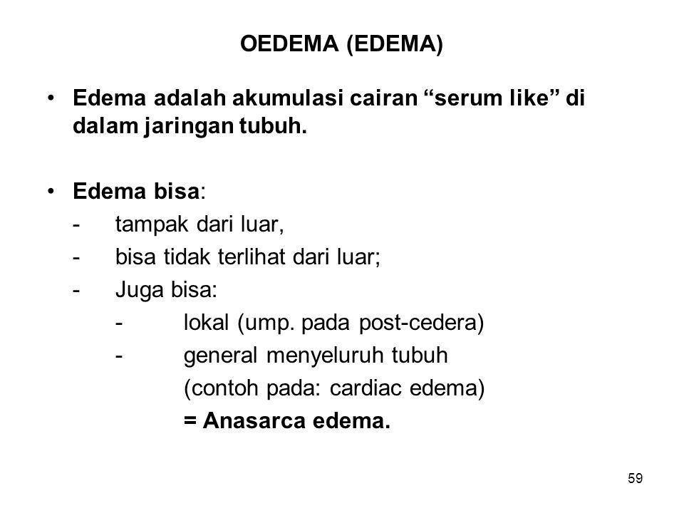 """59 OEDEMA (EDEMA) Edema adalah akumulasi cairan """"serum like"""" di dalam jaringan tubuh. Edema bisa: - tampak dari luar, -bisa tidak terlihat dari luar;"""