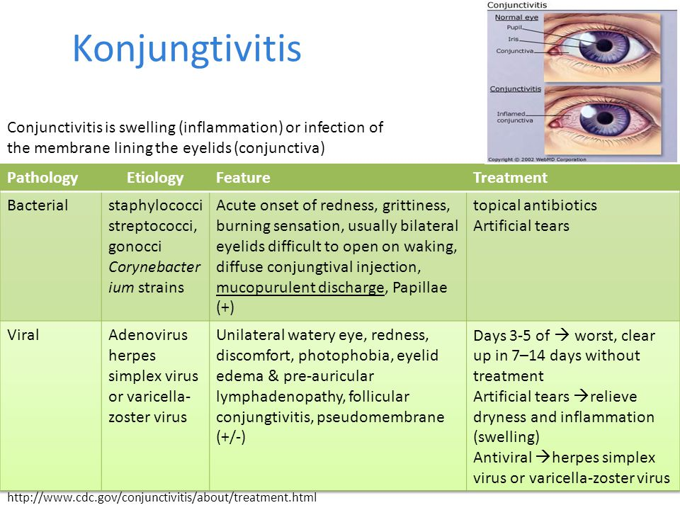 Konjungtivitis http://www.cdc.gov/conjunctivitis/about/treatment.html Conjunctivitis is swelling (inflammation) or infection of the membrane lining th
