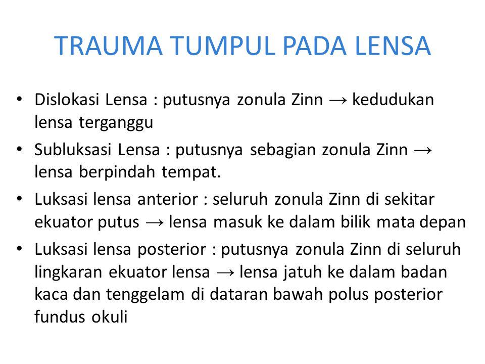 TRAUMA TUMPUL PADA LENSA Dislokasi Lensa : putusnya zonula Zinn → kedudukan lensa terganggu Subluksasi Lensa : putusnya sebagian zonula Zinn → lensa b