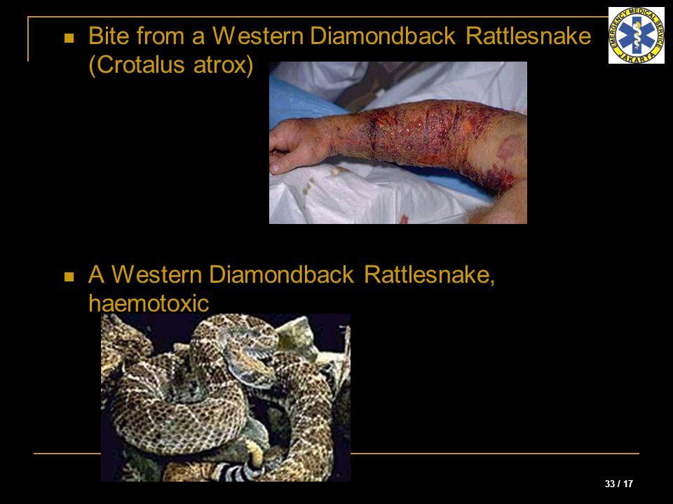 33 / 17 Bite from a Western Diamondback Rattlesnake (Crotalus atrox) A Western Diamondback Rattlesnake, haemotoxic
