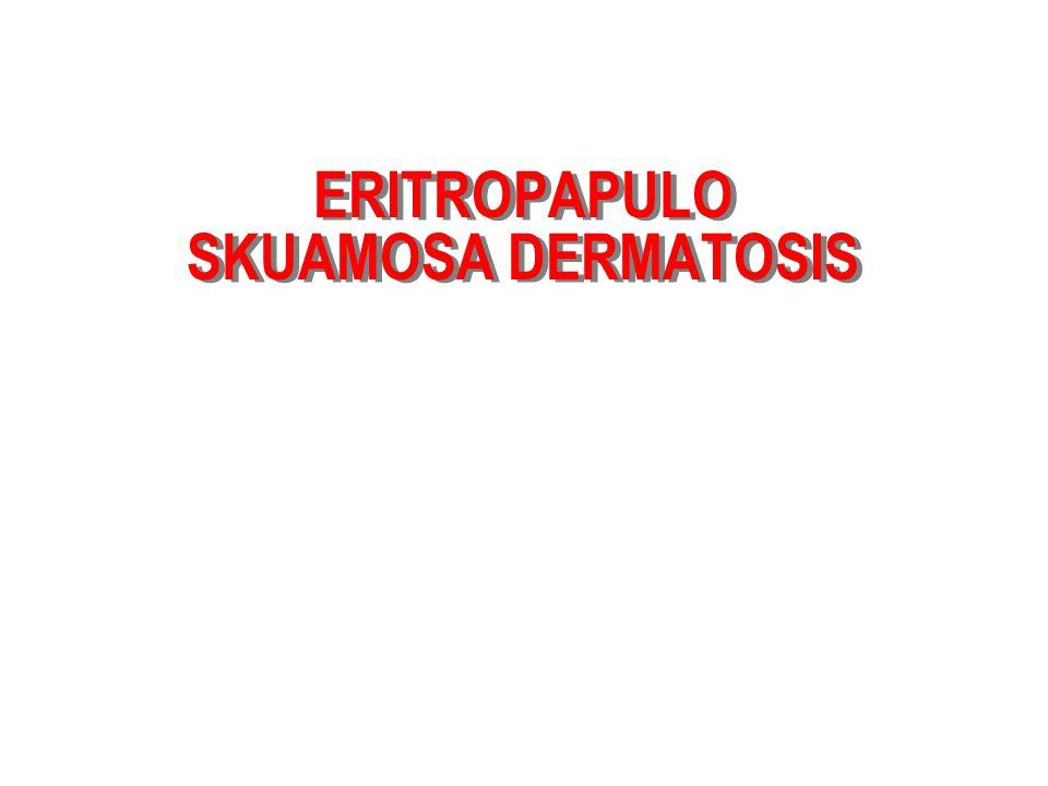ERITROPAPULO SKUAMOSA DERMATOSIS