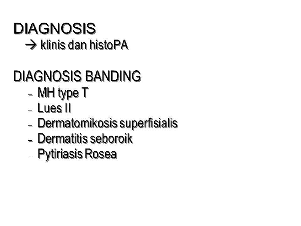DIAGNOSIS  klinis dan histoPA DIAGNOSIS BANDING – MH type T – Lues II – Dermatomikosis superfisialis – Dermatitis seboroik – Pytiriasis Rosea DIAGNOS