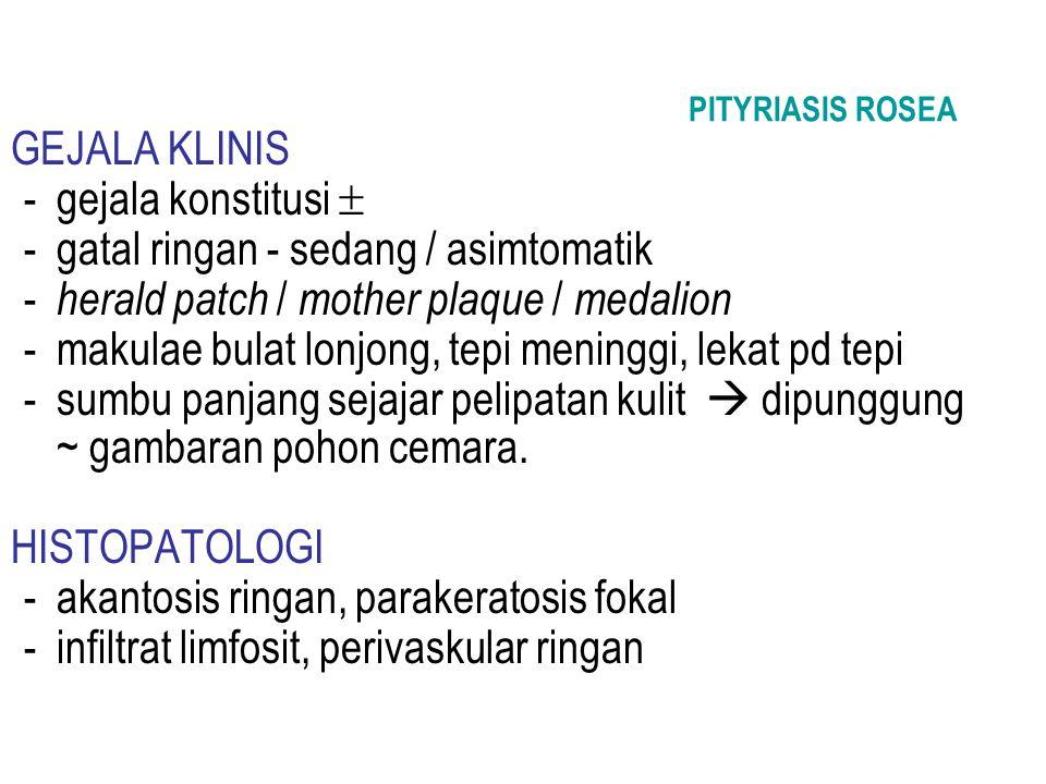 PITYRIASIS ROSEA GEJALA KLINIS -gejala konstitusi  -gatal ringan - sedang / asimtomatik - herald patch / mother plaque / medalion -makulae bulat lonj