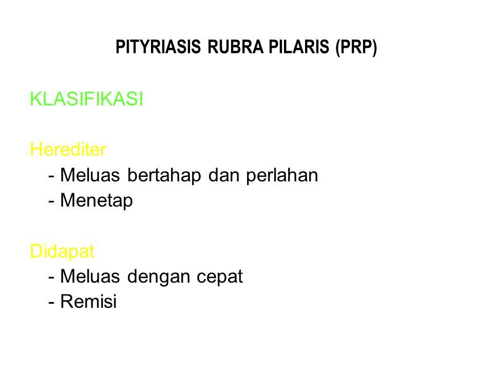 PITYRIASIS RUBRA PILARIS (PRP) KLASIFIKASI Herediter - Meluas bertahap dan perlahan - Menetap Didapat - Meluas dengan cepat - Remisi