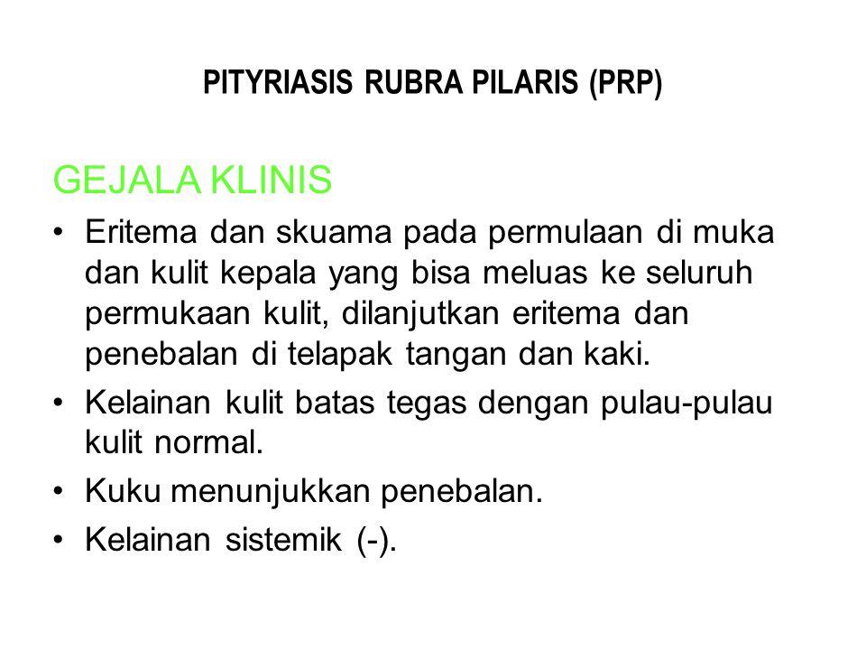 PITYRIASIS RUBRA PILARIS (PRP) GEJALA KLINIS Eritema dan skuama pada permulaan di muka dan kulit kepala yang bisa meluas ke seluruh permukaan kulit, d
