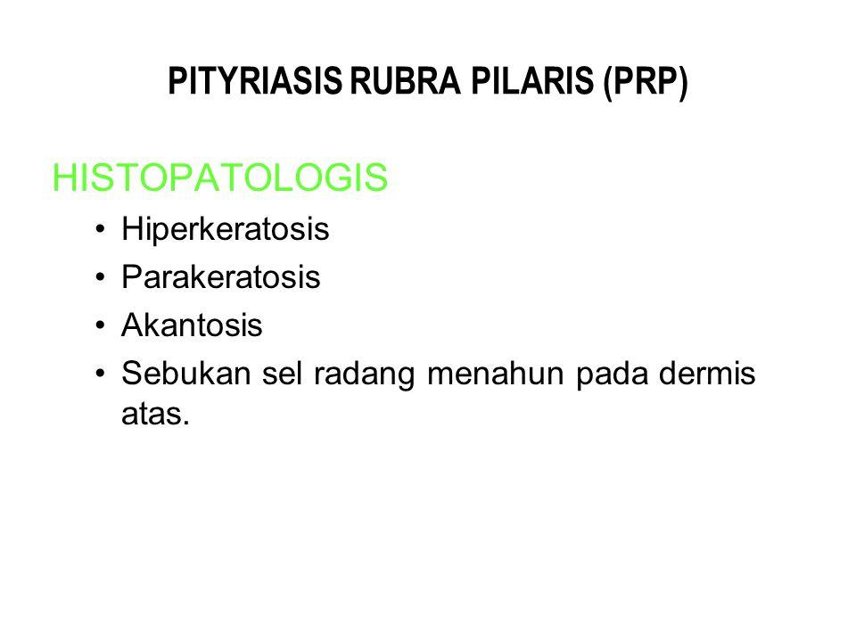 PITYRIASIS RUBRA PILARIS (PRP) HISTOPATOLOGIS Hiperkeratosis Parakeratosis Akantosis Sebukan sel radang menahun pada dermis atas.