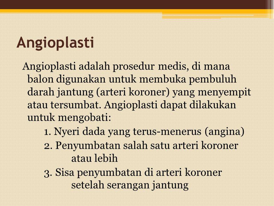 Angioplasti Angioplasti adalah prosedur medis, di mana balon digunakan untuk membuka pembuluh darah jantung (arteri koroner) yang menyempit atau tersumbat.