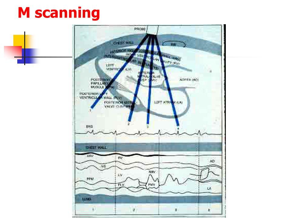 M scanning
