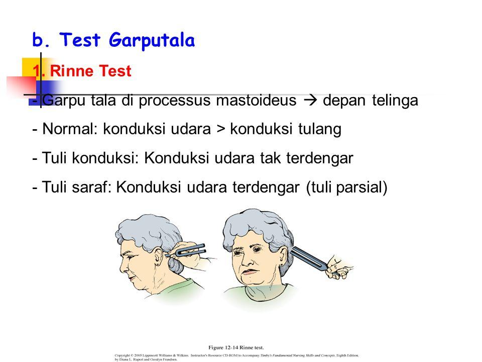 b. Test Garputala 1.