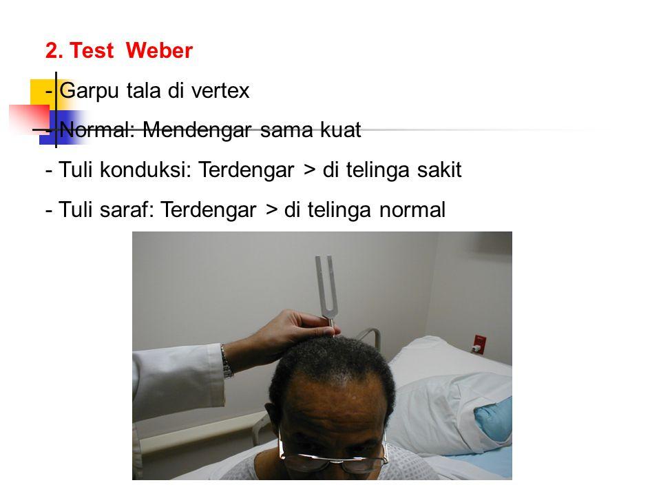 2. Test Weber - Garpu tala di vertex - Normal: Mendengar sama kuat - Tuli konduksi: Terdengar > di telinga sakit - Tuli saraf: Terdengar > di telinga