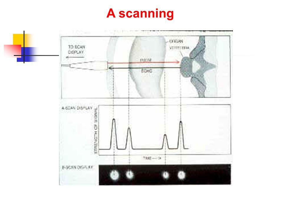 B scanning