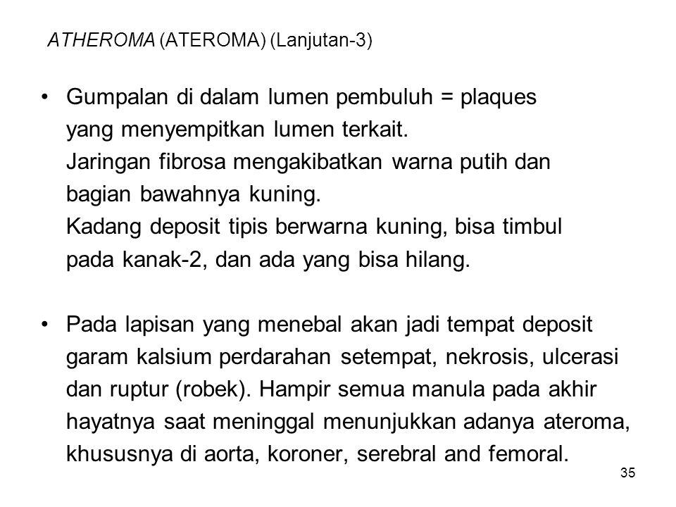 35 ATHEROMA (ATEROMA) (Lanjutan-3) Gumpalan di dalam lumen pembuluh = plaques yang menyempitkan lumen terkait. Jaringan fibrosa mengakibatkan warna pu