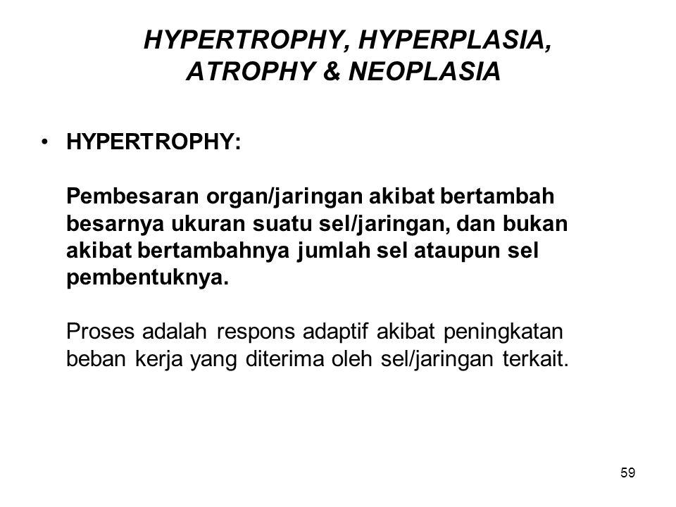 59 HYPERTROPHY, HYPERPLASIA, ATROPHY & NEOPLASIA HYPERTROPHY: Pembesaran organ/jaringan akibat bertambah besarnya ukuran suatu sel/jaringan, dan bukan