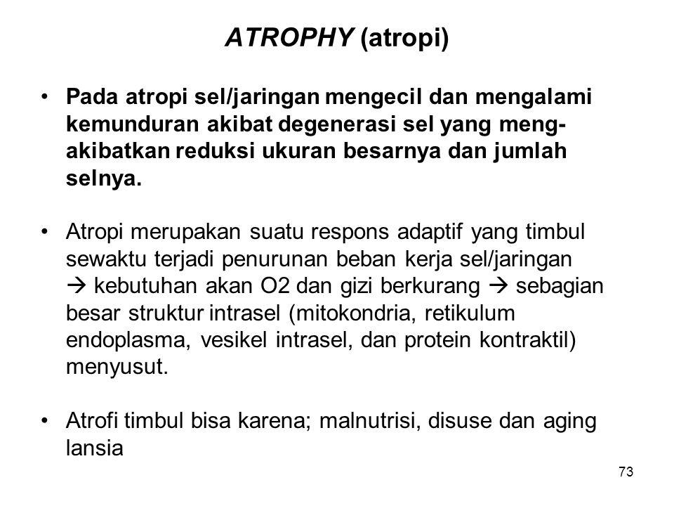 73 ATROPHY (atropi) Pada atropi sel/jaringan mengecil dan mengalami kemunduran akibat degenerasi sel yang meng- akibatkan reduksi ukuran besarnya dan