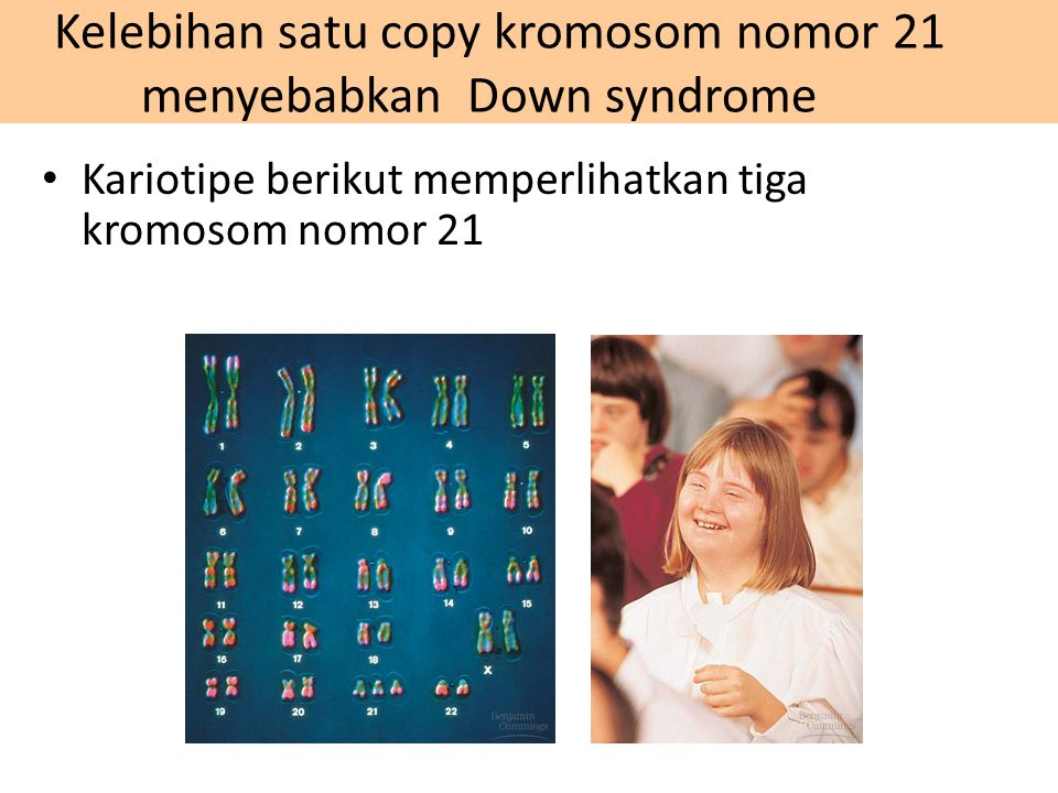 Kariotipe berikut memperlihatkan tiga kromosom nomor 21 Kelebihan satu copy kromosom nomor 21 menyebabkan Down syndrome