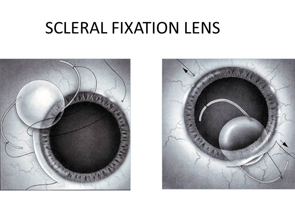 SCLERAL FIXATION LENS