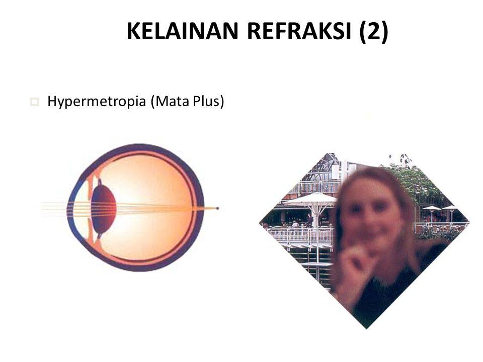 KELAINAN REFRAKSI (2)  Hypermetropia (Mata Plus)