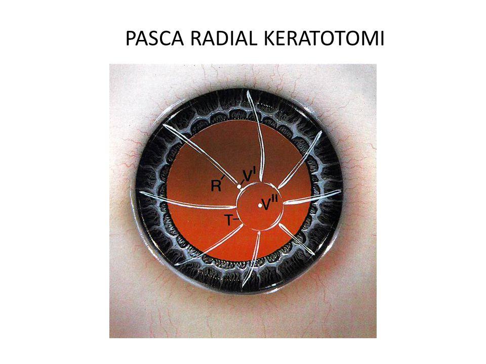PASCA RADIAL KERATOTOMI