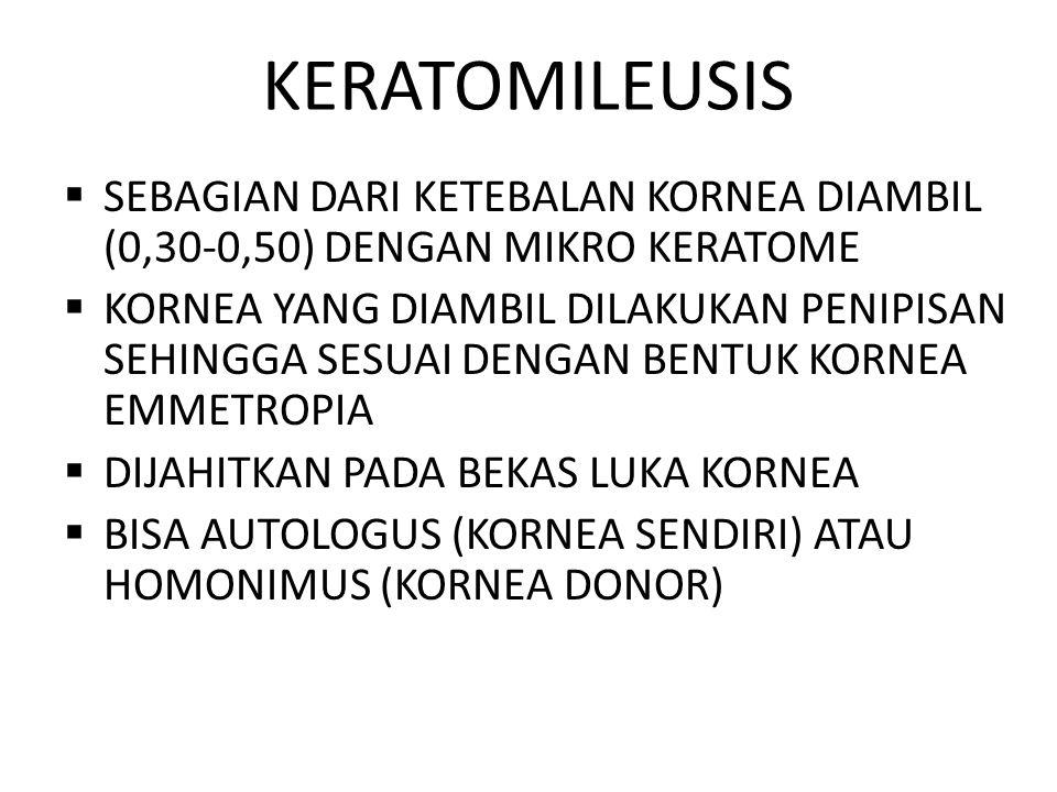 KERATOMILEUSIS  SEBAGIAN DARI KETEBALAN KORNEA DIAMBIL (0,30-0,50) DENGAN MIKRO KERATOME  KORNEA YANG DIAMBIL DILAKUKAN PENIPISAN SEHINGGA SESUAI DE