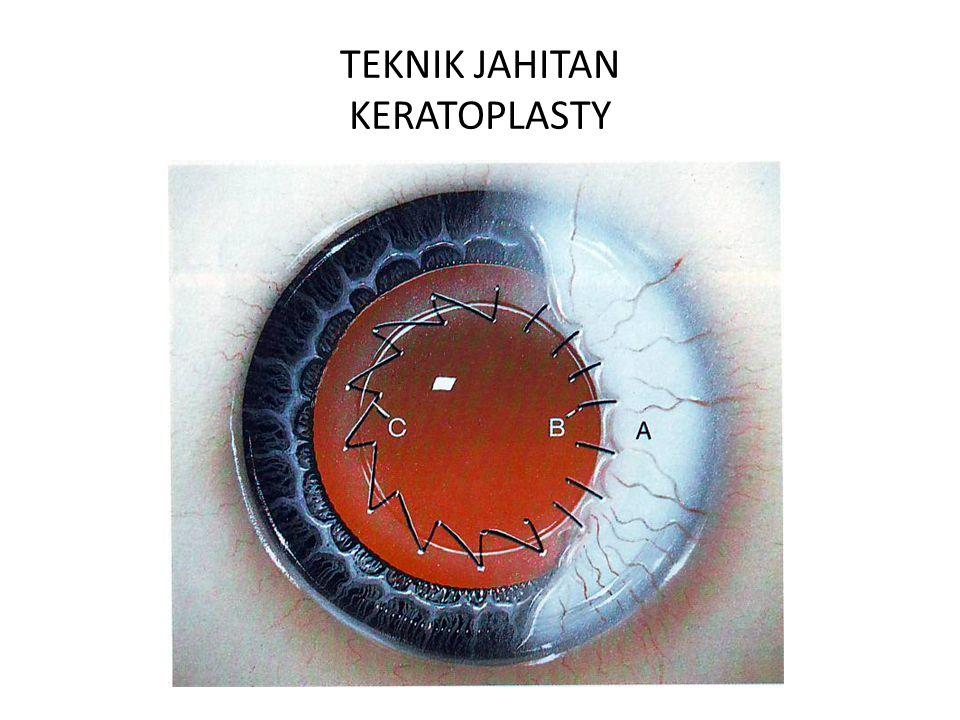 TEKNIK JAHITAN KERATOPLASTY