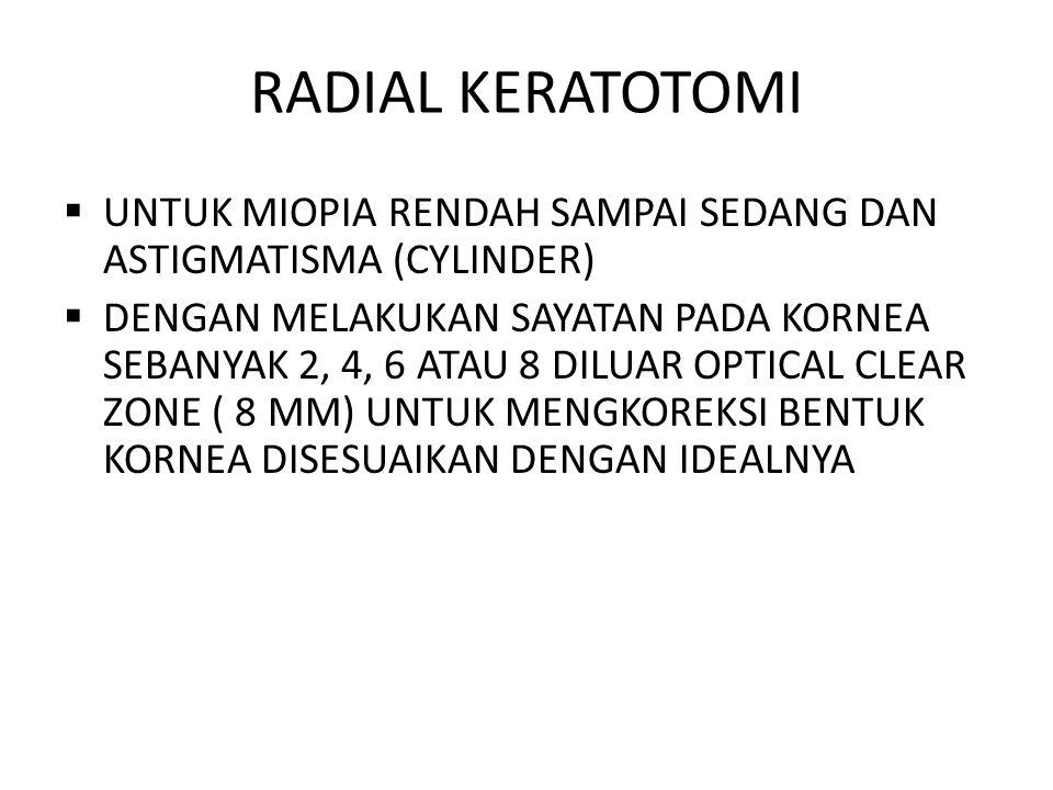 RADIAL KERATOTOMI  UNTUK MIOPIA RENDAH SAMPAI SEDANG DAN ASTIGMATISMA (CYLINDER)  DENGAN MELAKUKAN SAYATAN PADA KORNEA SEBANYAK 2, 4, 6 ATAU 8 DILUA