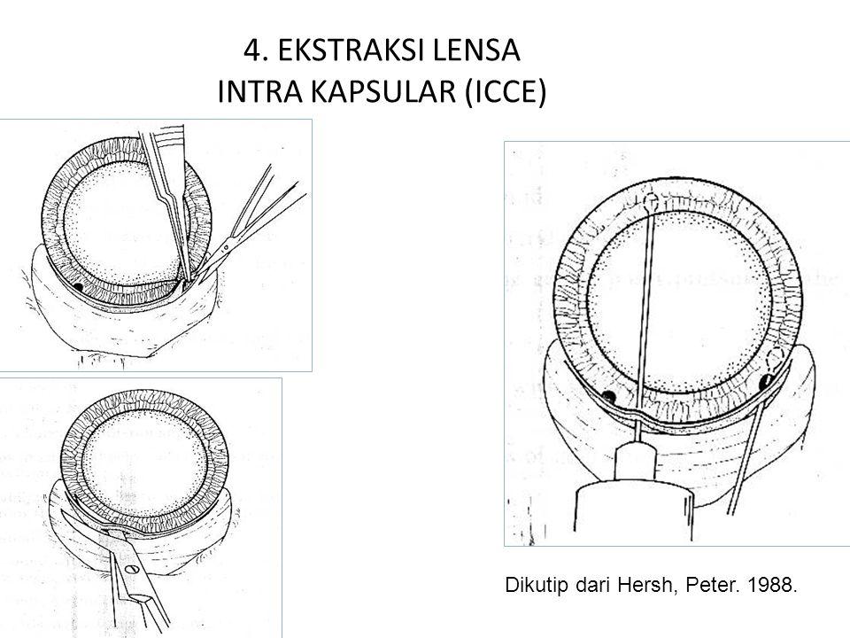 4. EKSTRAKSI LENSA INTRA KAPSULAR (ICCE) Dikutip dari Hersh, Peter. 1988.