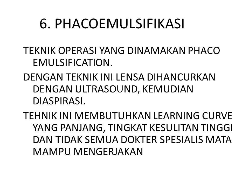 6. PHACOEMULSIFIKASI TEKNIK OPERASI YANG DINAMAKAN PHACO EMULSIFICATION. DENGAN TEKNIK INI LENSA DIHANCURKAN DENGAN ULTRASOUND, KEMUDIAN DIASPIRASI. T