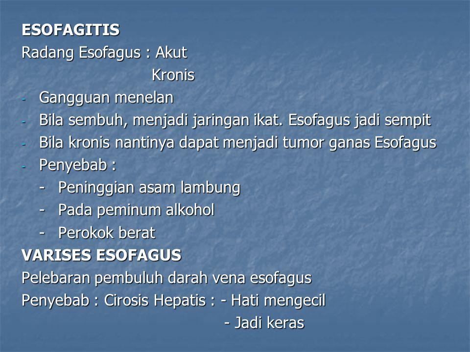 ESOFAGITIS Radang Esofagus : Akut Kronis Kronis - Gangguan menelan - Bila sembuh, menjadi jaringan ikat. Esofagus jadi sempit - Bila kronis nantinya d
